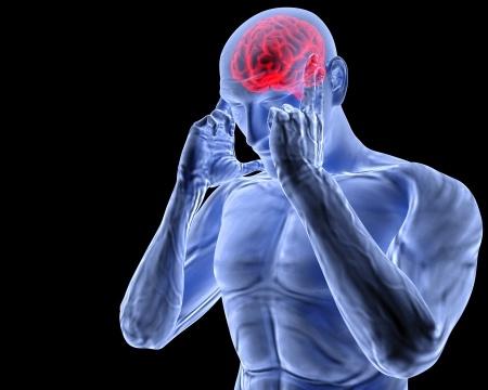 Types of Headaches