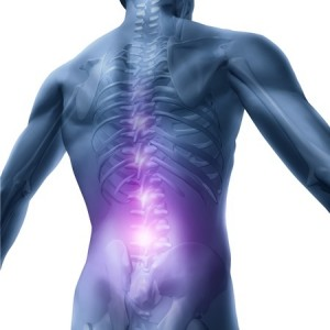 Chiropractic Alternative to Back Surgery