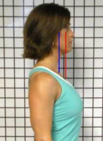 Good Head Posture